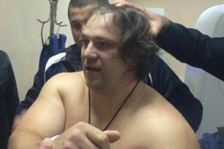 МВД: Пугачева ранил погибший патрульный, ноне его напарница